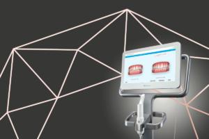 Read more about the article Ortodontia Digital Invisalign, o que é e como se faz o tratamento
