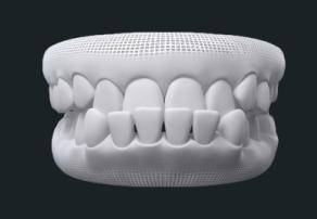 Prognatismo mandibular - tratamento com aparelho Invisalign