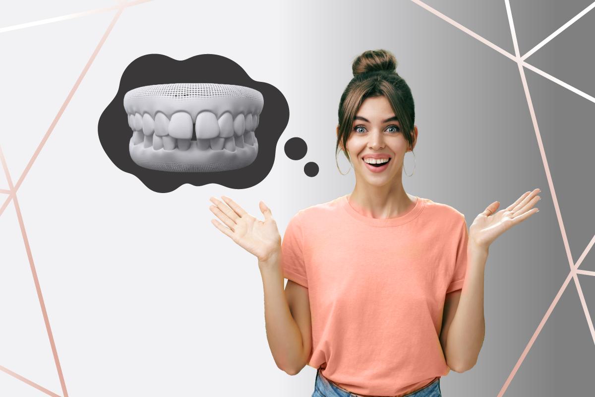 Read more about the article Dentes separados ou diastema: causas e tratamento com Invisalign®